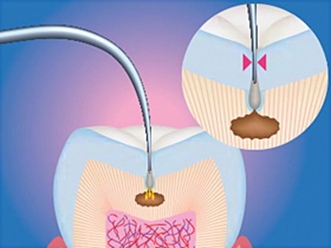 虫歯診断装置 ダイアグノデント(レーザー機器)