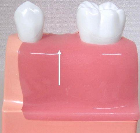 従来の無くなった歯を入れる治療法(ブリッジ)