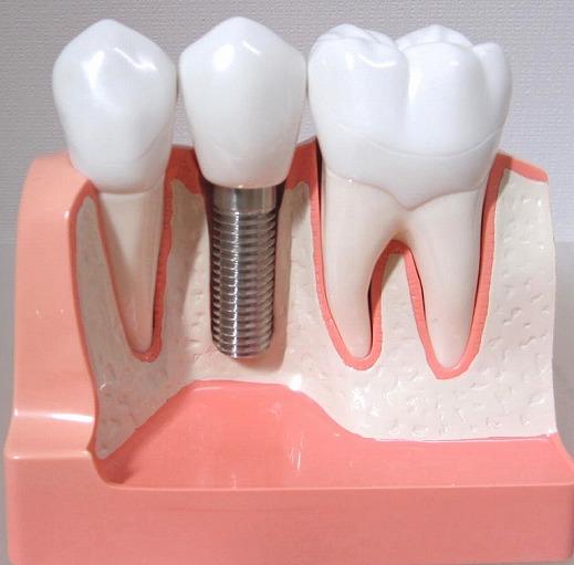 インプラントによる無くなった歯を入れる治療法
